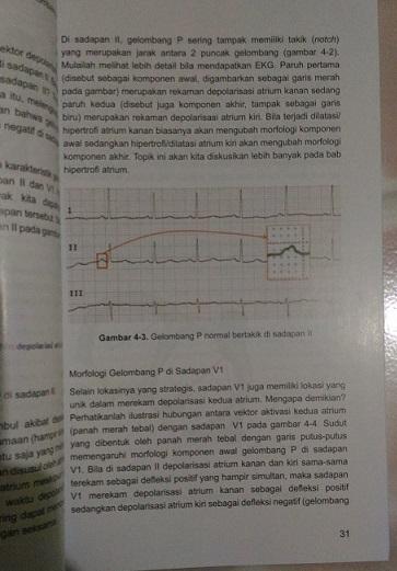 Elektrokardiografi Ilustratif